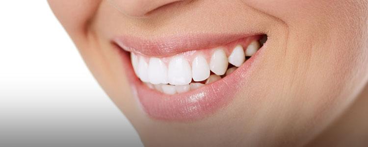 牙齿健康美白,绽放自信笑容