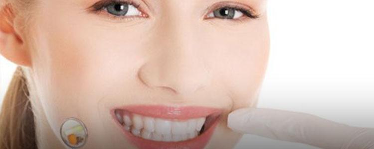 牙齿护理 | 美白未语先笑,搞定男神就靠你们了!